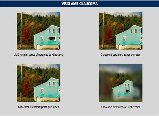 20170601 visió amb glaucoma CA