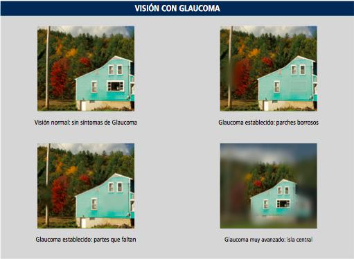 20170601 visió amb glaucoma ES