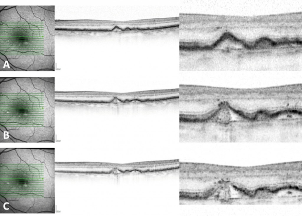 Identification through SD-OCT of a drusen that is commencing the atrophy process. A) A drusen without irregularities is observed, but with hyperreflectivity in the superimposed RPE. B) The RPE shows irregularities and hyperreflective dots above it. C) The damage in the RPE is more evident with the presence of isoreflective points— drusen ooze.