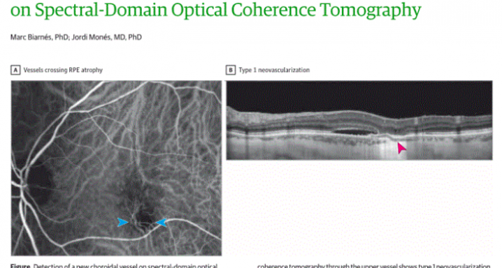 Direct Visualization of a New Choroidal Vessel...