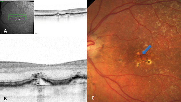 Image A: infrared image of the retina and alongside an OCT section in which some drusen are seen (in greater detail, image B). Image B: a drusen that displays release of material to the other layers of the retina (drusen ooze). Image C: Retinography of a patient with numerous drusen, hyperpigmentation and hypopigmentation. The arrow indicates the drusen we saw in the previous OCT image.