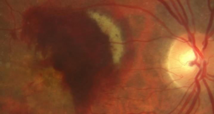 hemorragia subretinal