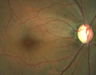 Nervi óptic glaucomatos