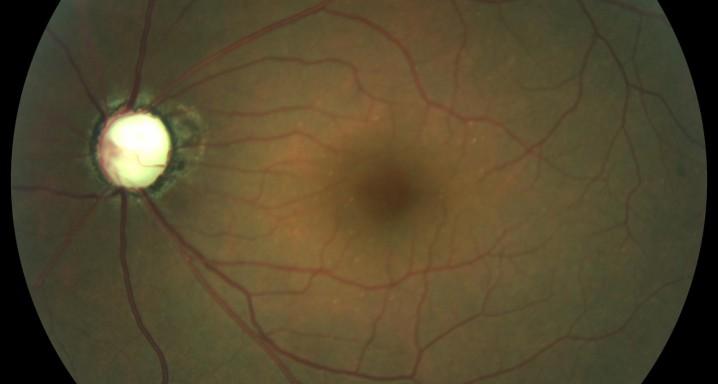 Nervi óptic glaucomatos molt avançat