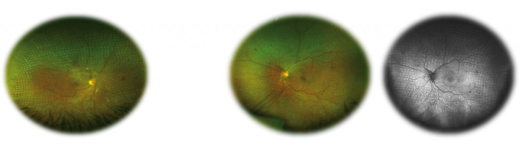 Retinography (left) of a patient with Proliferative Diabetic Retinopathy (PDR) treated with panphotogoagulation (PPC). Retinography in colour (center) and autofluorescence (right) of a patient with PDR treated with PPC.