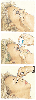 Fig.1 Drawing of the correct technique for inserting the drops (Source: Glaucoma Research Foundation: www.glaucoma.org)