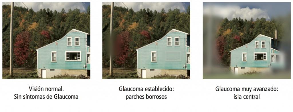 visió glaucoma