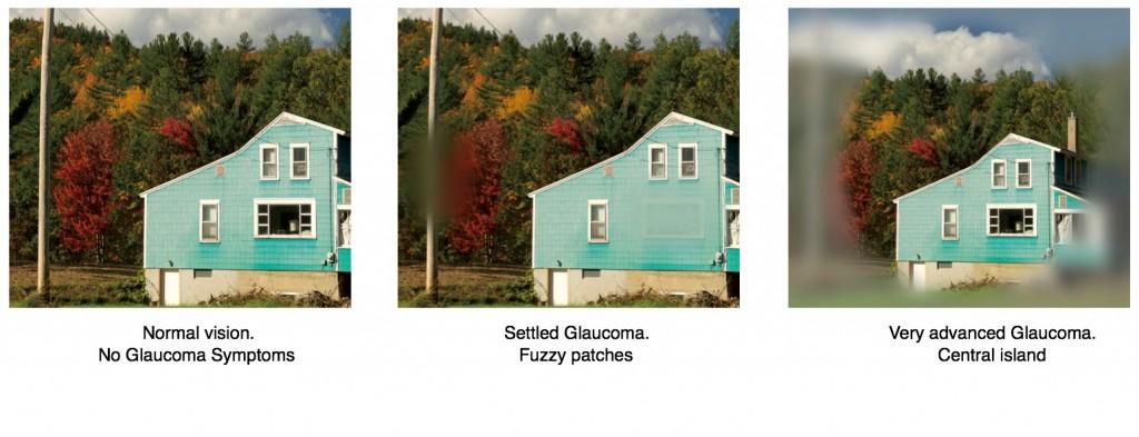 visió glaucoma EN