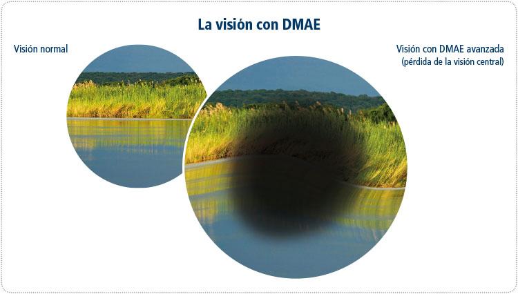 vision DMAE x web 6Nov-CAST